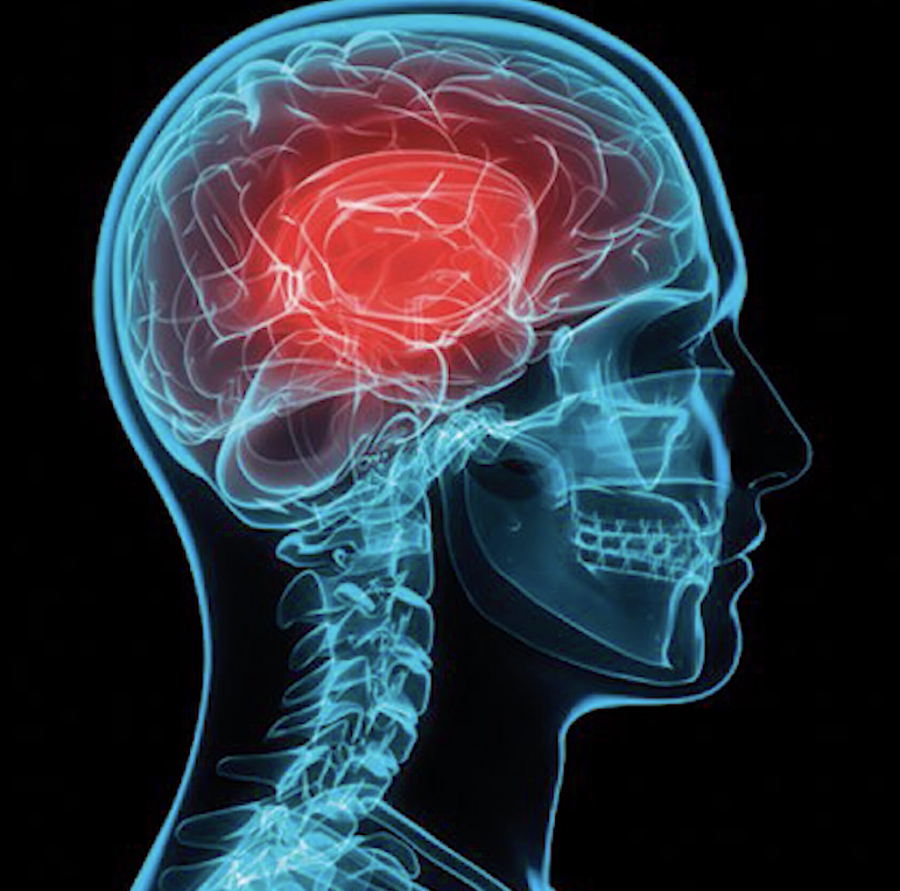 Concussions+In+Sports